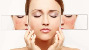 how-to-get-rid-of-facial-redness