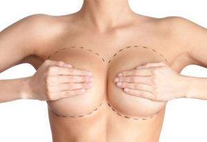 meme-kucultme-estetiginde-liposuction-yontemi
